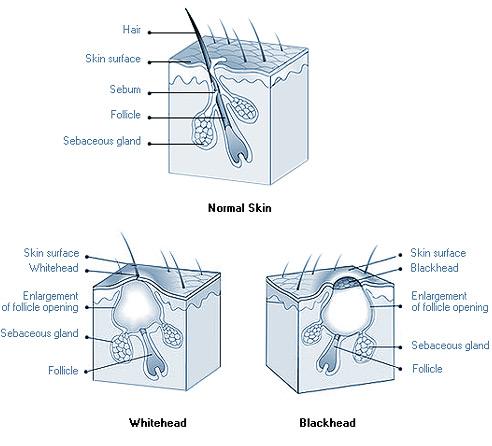 Noramal Skin, Whitehead & Blackhead
