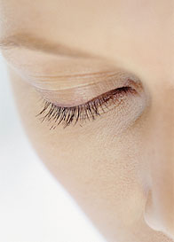 Eyelash Transplantation