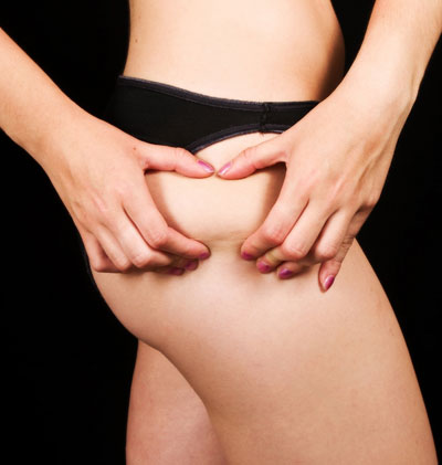 Women's cellulite