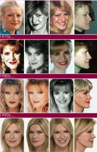 Cindy Jackson, record of plastic surgeries