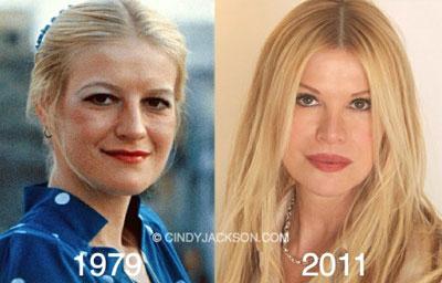 Cindy Jackson, record of plastic surgeries