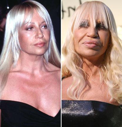 10 scary celeb plastic surgeries pictures celebrity for Interieur du vagin