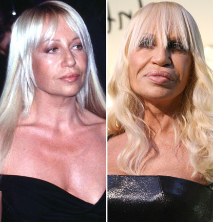 10 scary celeb plastic surgeries pictures celebrity