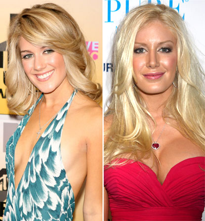 Heidi Montag before and after Boob Surgery
