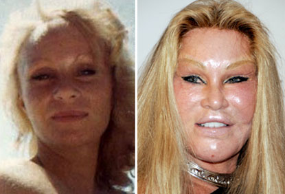 jocelyn-wildenstein-plastic-surgery-before-after