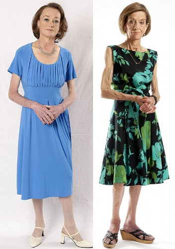 Margaret Bradley and Ruth Hughes are after 50 and anorexic