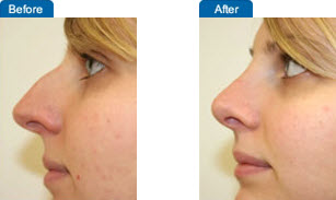 Nose Surgery: Before and After Pictures