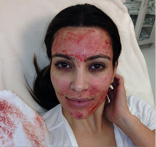 Blood-Facial Mask by Kim Kardashian