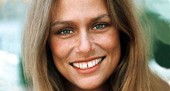 lauren-hutton-teeth
