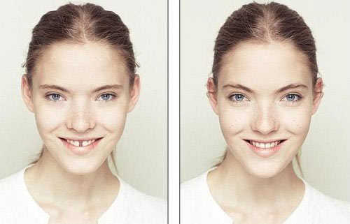 symmetrical-face4