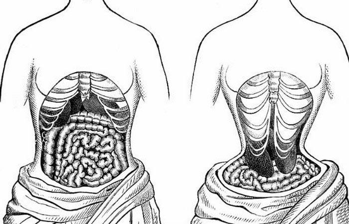 ridiculous-fashion-corcette-corsette