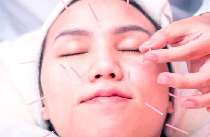 5 Surprising Ways in which Acupuncture Improve Your Looks ...
