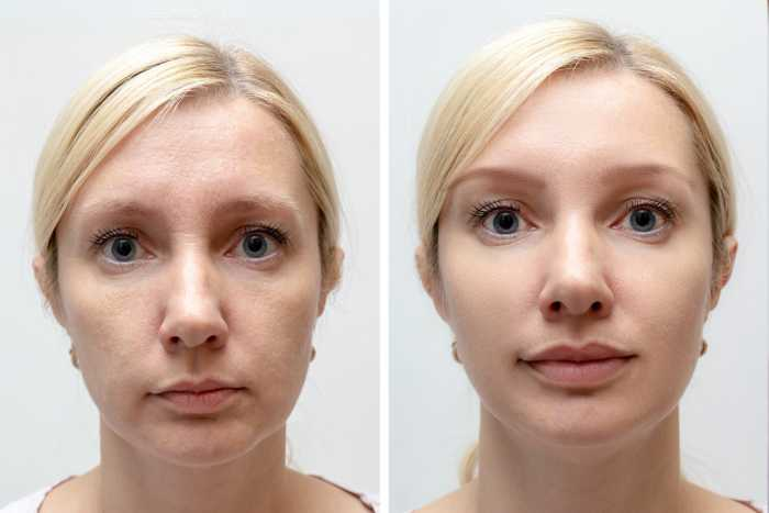 Woman face with wrinkles and age change before and after treatment - the result of rejuvenating cosmetological procedures of biorevitalization, face lifting and pigment spots removal.